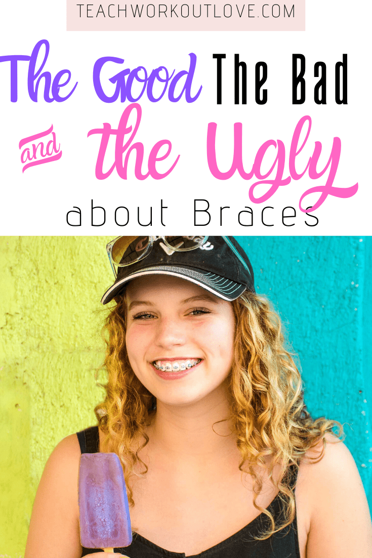 The-Good-The-Bad-and-The-Ugly-about-Braces-teachworkoutlove.com-TWL-Working-Moms